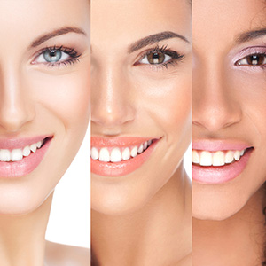 Teeth Whitening with our Cosmetic Dentist Hull